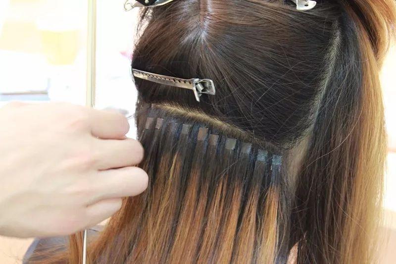 Hair-transplants-Hair-treatment